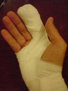 人差し指をカッターで切って全治10日間