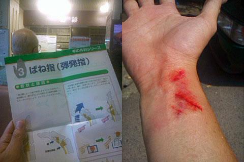 左手の「ばね指」、右手のすり傷