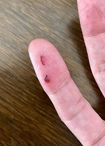 小指のケガ