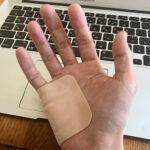 右手・腱鞘炎